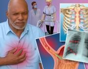 Acute Chest Pain