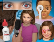 Amblyopia - Detection and Treatment