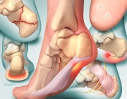 Heel Pain - Diagnosis and Management