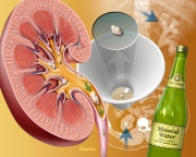 Medical management of kidney stones