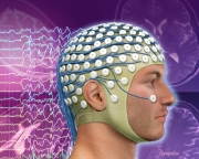 Non-febrile seizures