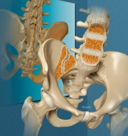 Spondyloarthropathies