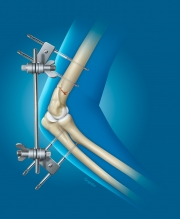 Repair of Elbow Fracture with External Fixation