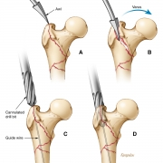 Femoral fracture surgical repair