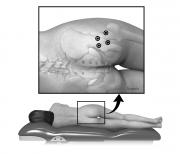 Botuninum toxin injection sites at hip
