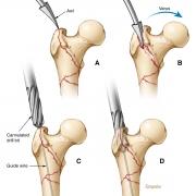 Femoral fracture surgical repair