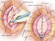 Incisional hernia repair 2