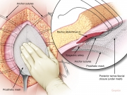 Incisional hernia repair 3