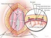 Incisional hernia repair 4