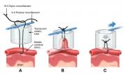 mechanical ligature of middle cerebral artery in rat