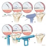 meniscus repair modalities