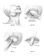 lateral neck abcess surgical procedure