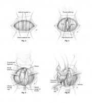 thyroidectomy procedure initial steps