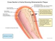pre-existing pathology predisposing injury