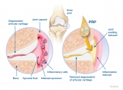 Osteoarthritis and PRP treatment concept