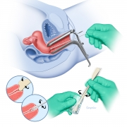 Pap (cervical) smear test procedure