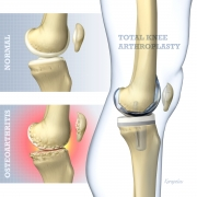 Total knee arthroplasty basic concept