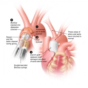 Surgical repair of aortic dissection