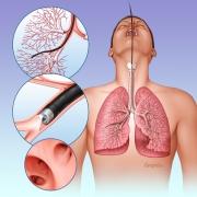 Bronchoscopy procedure