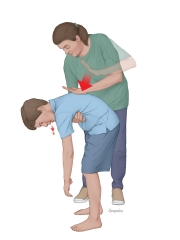 FIrst Aid for Choking - Back Blows
