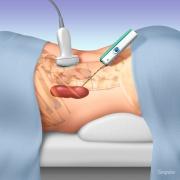Kidney biopsy procedure