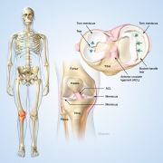 Meniscus cartilage tears