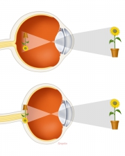 Refraction in nearsighted and farsighted eyes