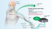Sensory Nerve Stimulation via NSM