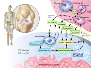 Catabolic environment of osteoarthritic knee joint